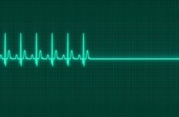 48238874 - a electrocardiography exitus illustration in dark screen background